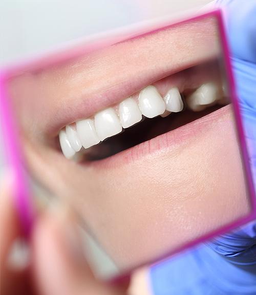 Dental Bridges   Ripley Dental