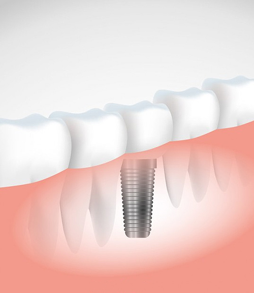 dental Implants   Ripley Dental
